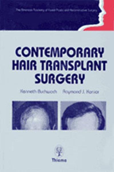 Contemporary Hair Transplant Surgery als Buch v...