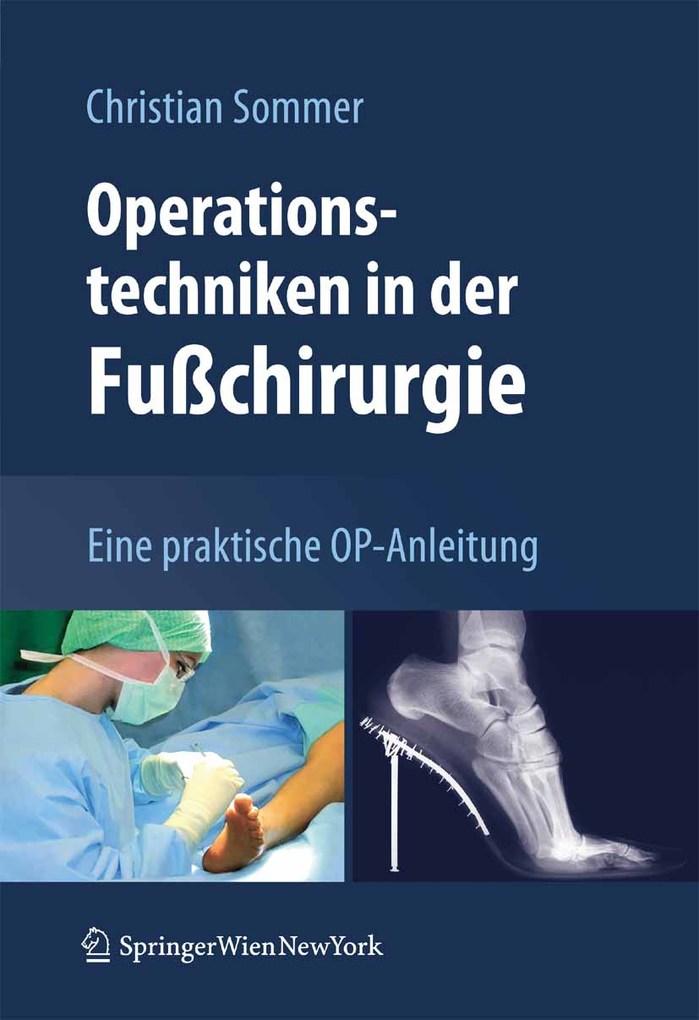 Operationstechniken in der Fußchirurgie als eBo...