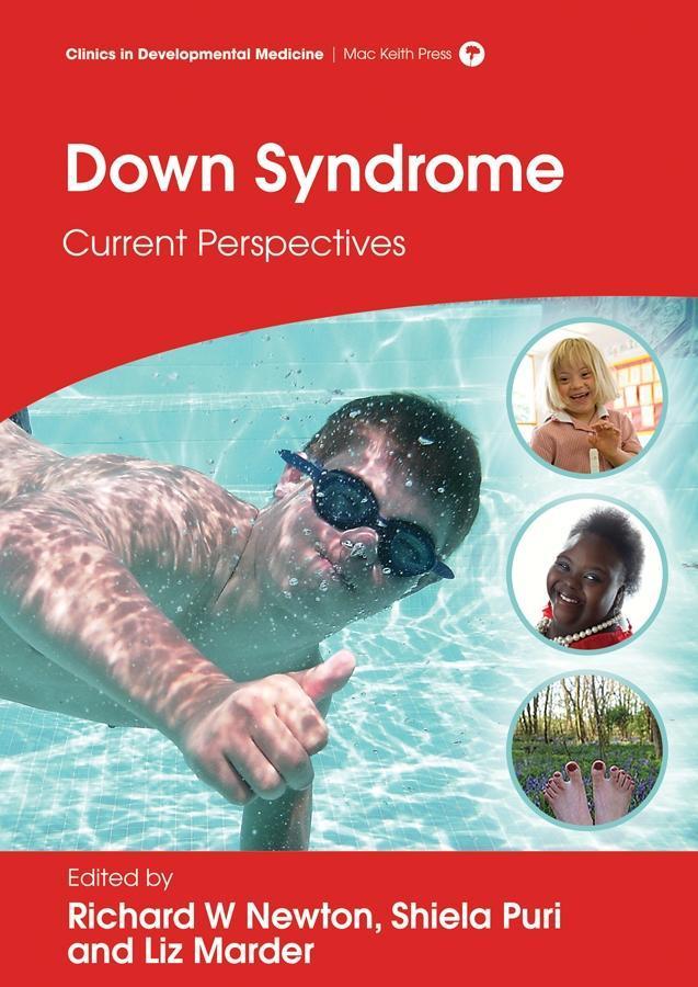 Down Syndrome als eBook Download von Richard W ...