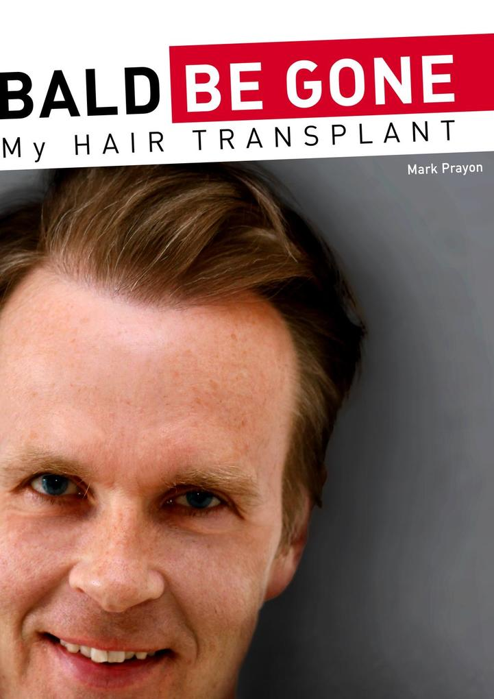 Bald Be Gone - My Hair Transplant als eBook Dow...