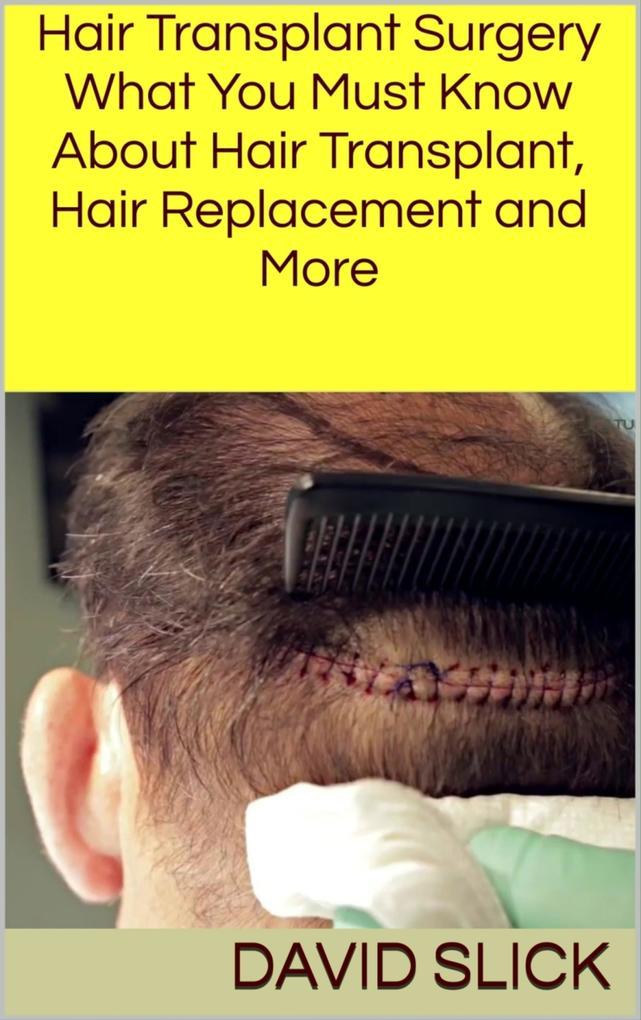 Hair Transplant Surgery als eBook Download von ...