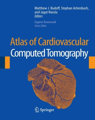 Atlas of Cardiovascular Computed Tomography: In...