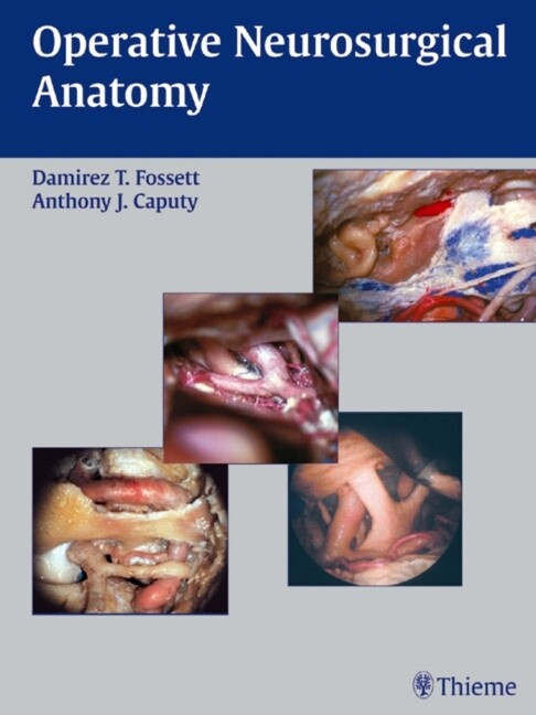 Operative Neurosurgical Anatomy als Buch