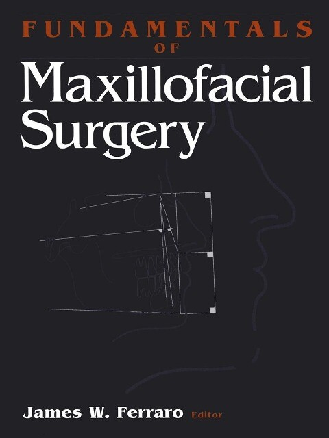 Fundamentals of Maxillofacial Surgery als Buch