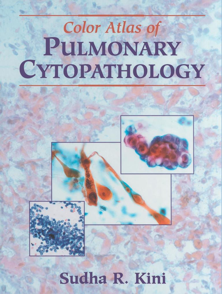Color Atlas of Pulmonary Cytopathology als Buch