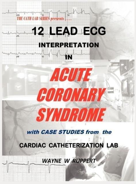 12 Lead ECG Interpretation in Acute Coronary Sy...