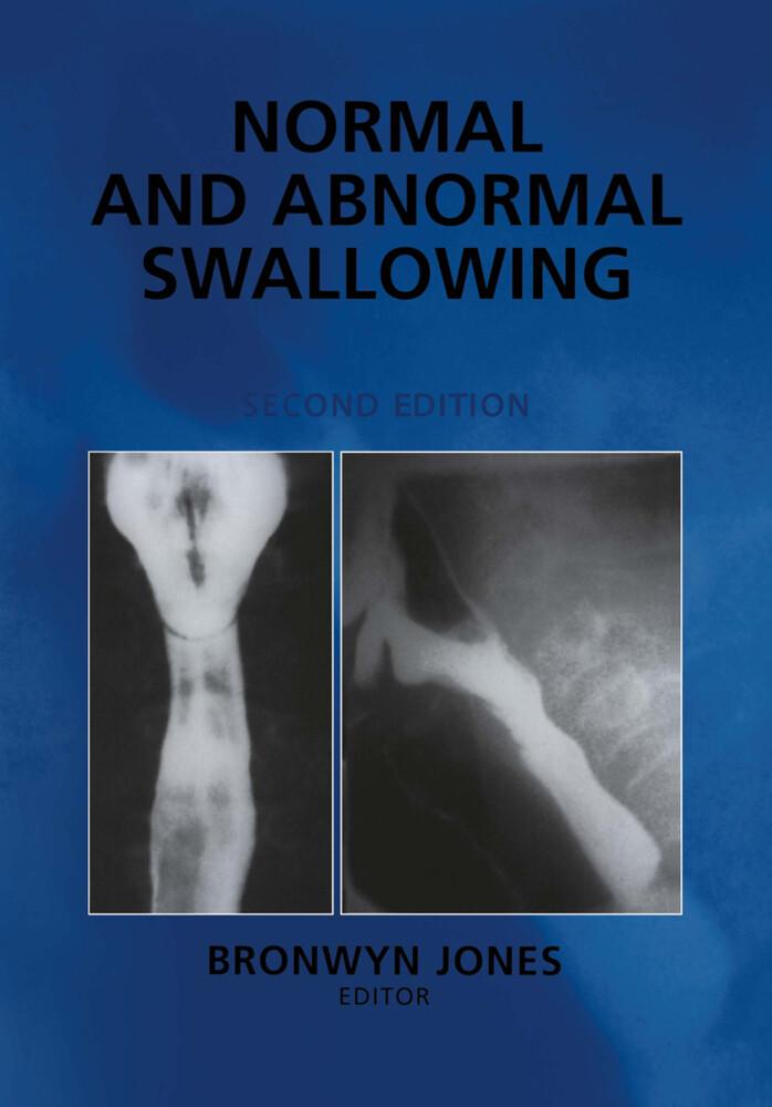 Normal and Abnormal Swallowing als Buch von