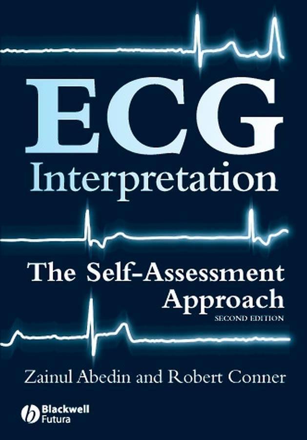 ECG Interpretation als eBook Download von Zainu...