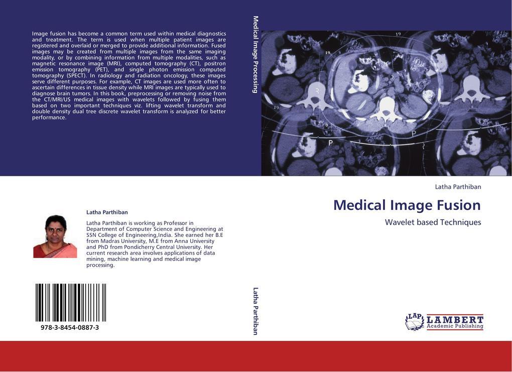 Medical Image Fusion als Buch von Latha Parthiban