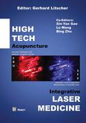 High Tech Acupuncture & Integrative Laser Medicine