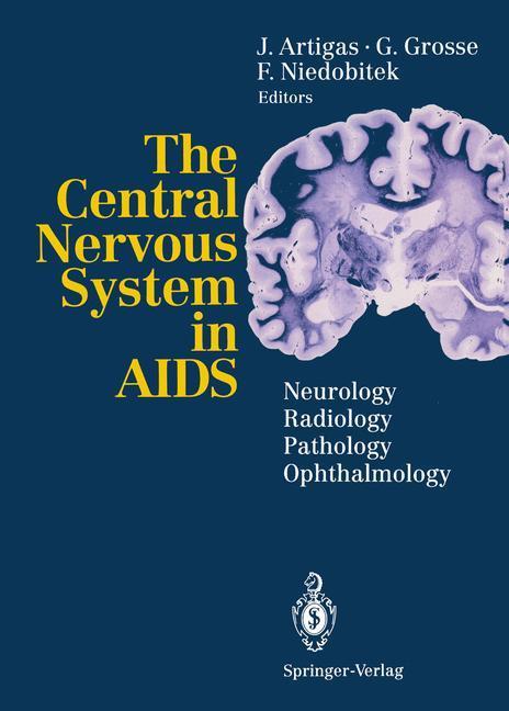 The Central Nervous System in AIDS als Buch von...