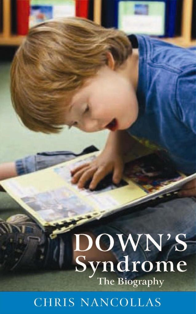 Down´s Syndrome - The Biography als eBook Downl...