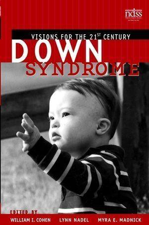 Down Syndrome als eBook Download von
