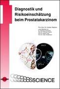 Diagnostik und Risikoeinschätzung beim Prostatakarzinom