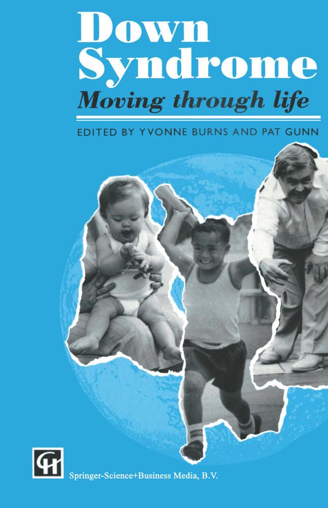 Down Syndrome als Buch von Yvonne Burns and Pat...