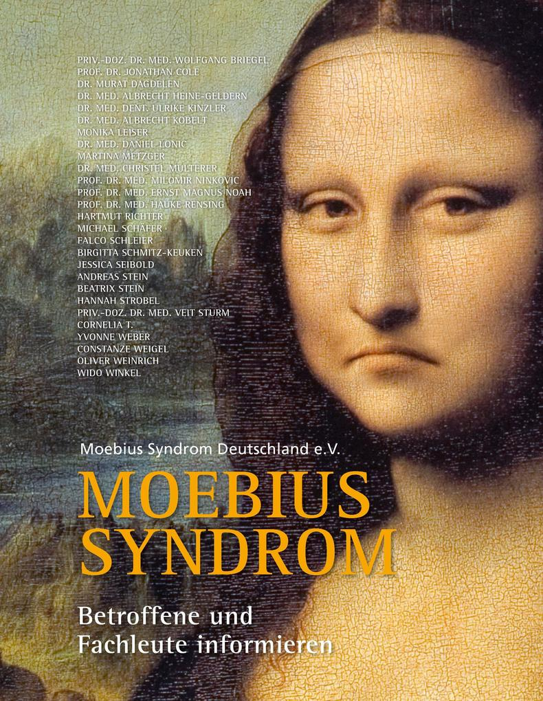 Moebius Syndrom als eBook Download von