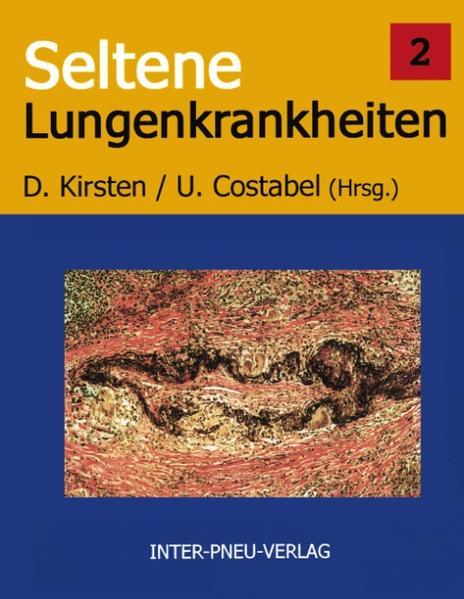 Seltene Lungenkrankheiten Band 2 als Buch