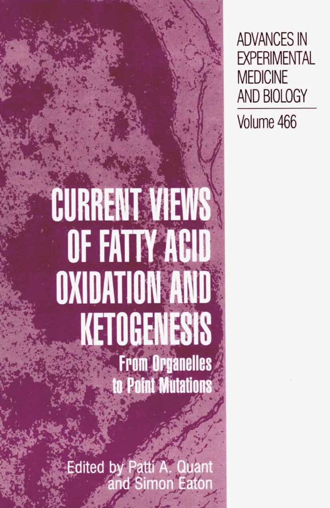 Current Views of Fatty Acid Oxidation and Ketogenesis als Buch