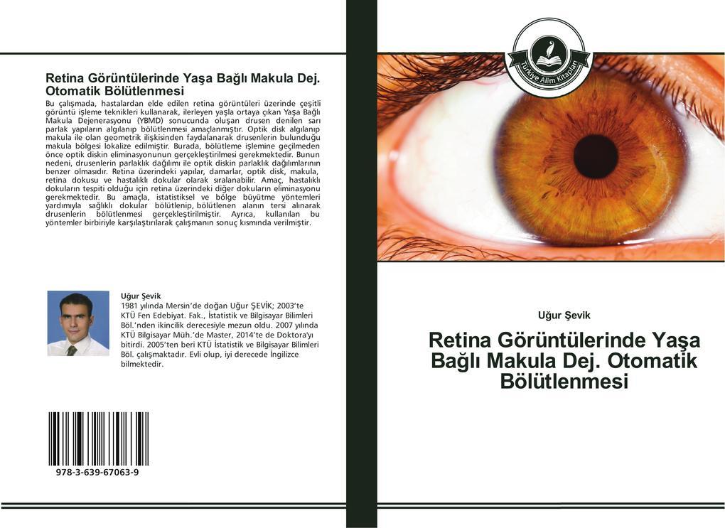 Retina Görüntülerinde Yasa Bagli Makula Dej. Otomatik Bölütlenmesi als Buch (gebunden)