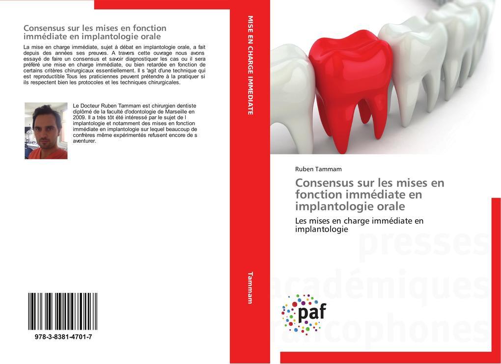Consensus sur les mises en fonction immédiate en implantologie orale als Buch (gebunden)