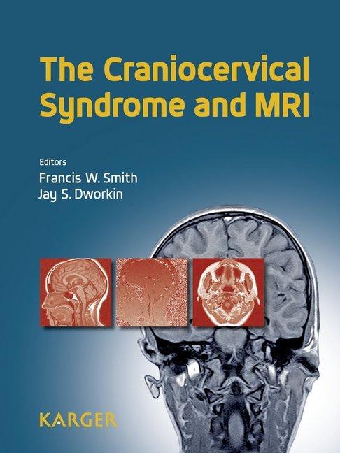 The Craniocervical Syndrome and MRI als Buch von