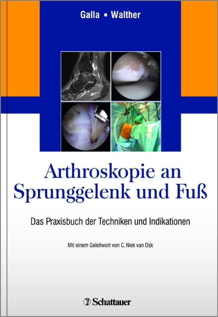 Arthroskopie an Sprunggelenk und Fuß als Buch von
