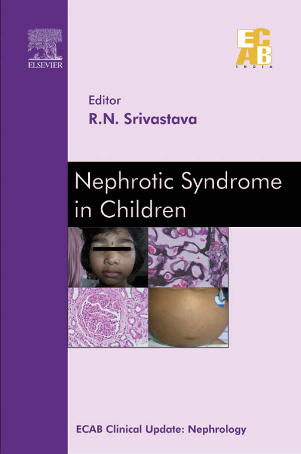 Nephrotic Syndrome in Children - ECAB - E-Book ...