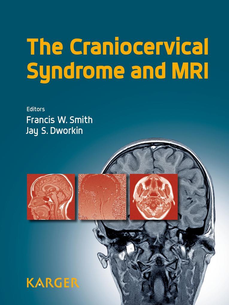 The Craniocervical Syndrome and MRI als eBook D...