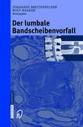 Der lumbale Bandscheibenvorfall