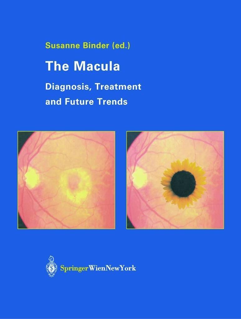 The Macula als Buch