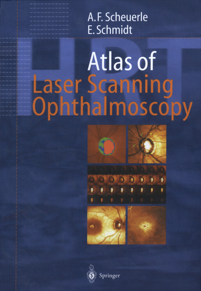 Atlas of Laser Scanning Ophthalmoscopy als Buch