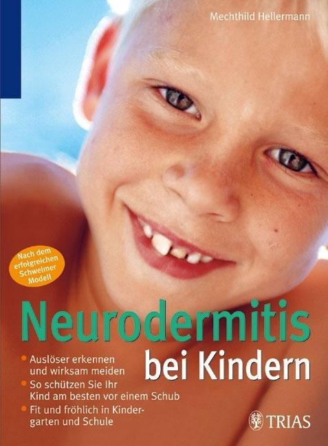 Neurodermitis bei Kindern als Buch