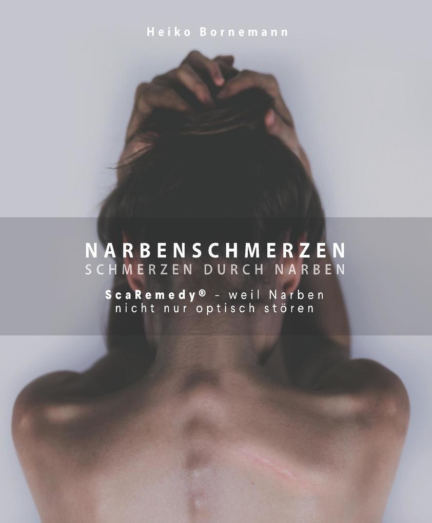Schmerzt narbe am hals Narben entfernen: