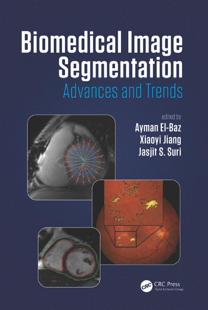 Biomedical Image Segmentation als eBook Downloa...