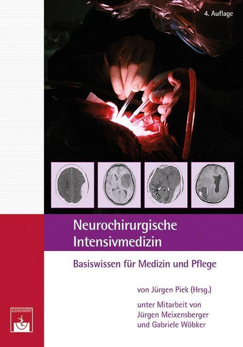 Neurochirurgische Intensivmedizin als Buch von