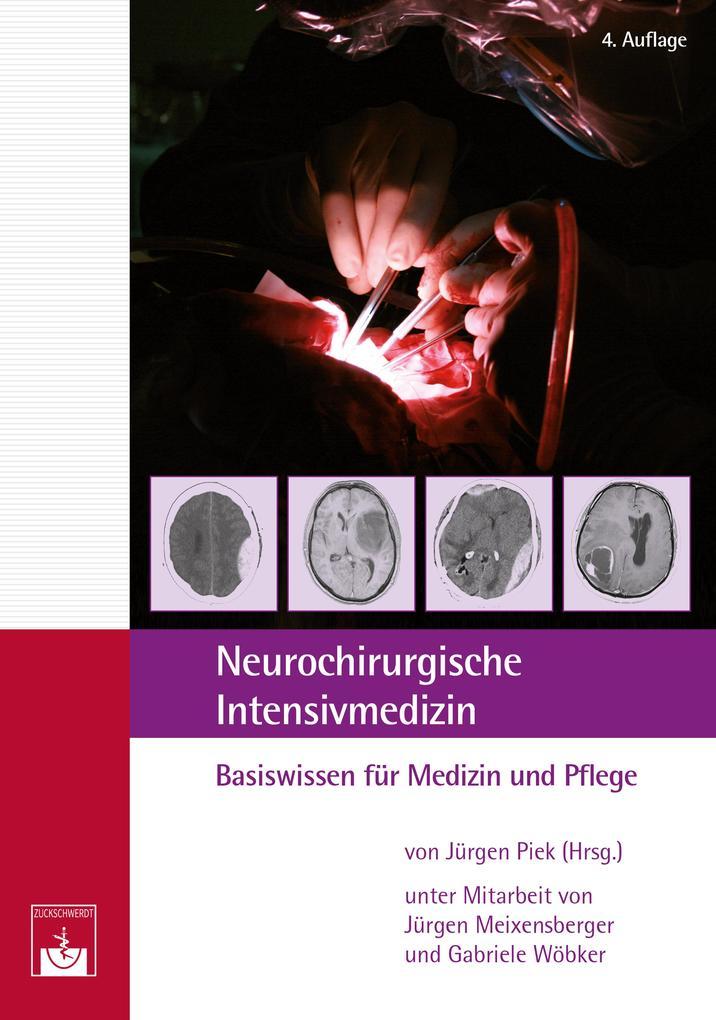 Neurochirurgische ´Intensivmedizin als eBook Do...