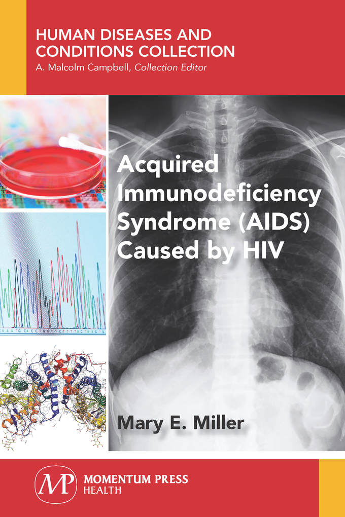 Acquired Immunodeficiency Syndrome (AIDS) Cause...