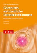 Chronisch entzündliche Darmerkrankungen - Krankheitsbild und Therapieoptionen