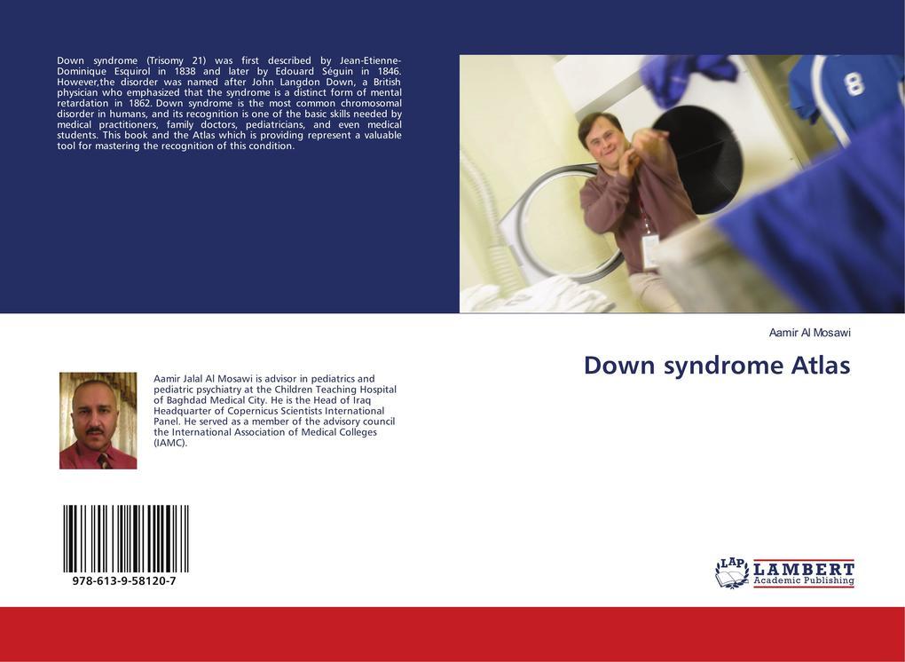 Down syndrome Atlas als Buch von Aamir Al Mosawi