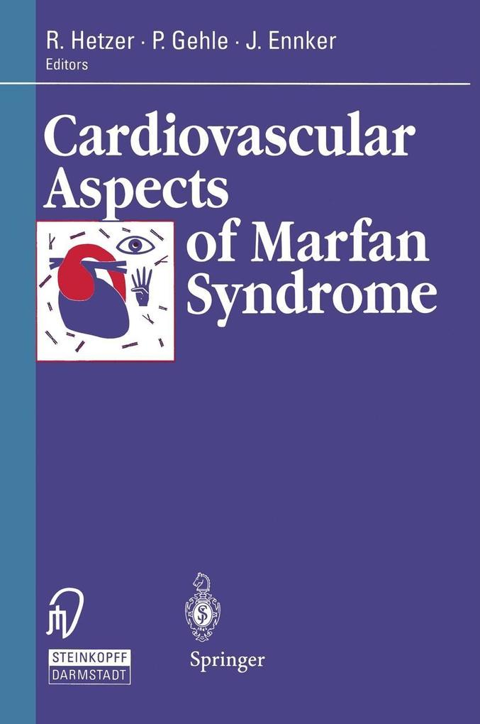 Cardiovascular Aspects of Marfan Syndrome als e...