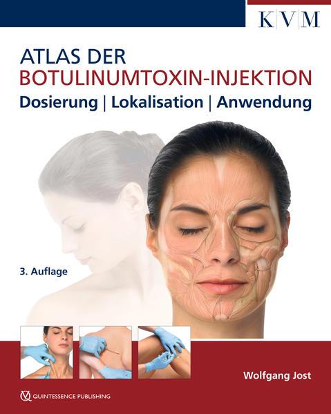Atlas der Botulinumtoxin-Injektion als Buch von...
