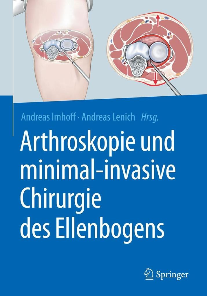 Arthroskopie und minimal-invasive Chirurgie des...