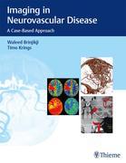 Imaging in Neurovascular Disease