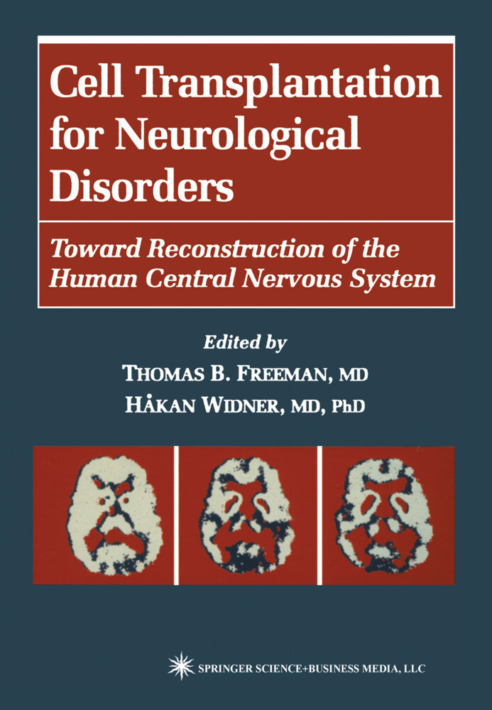 Cell Transplantation for Neurological Disorders als Buch