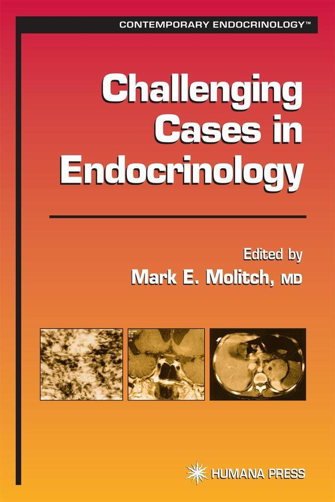 Challenging Cases in Endocrinology als Buch