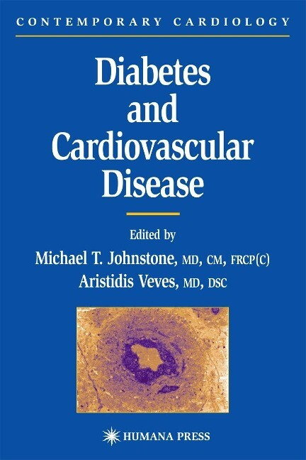 Diabetes and Cardiovascular Disease als Buch