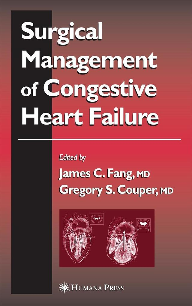Surgical Management of Congestive Heart Failure als Buch