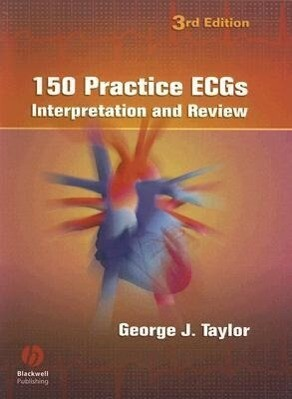 150 Practice Ecgs: Interpretation and Review als Taschenbuch