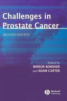 Challenges in Prostate Cancer als Buch
