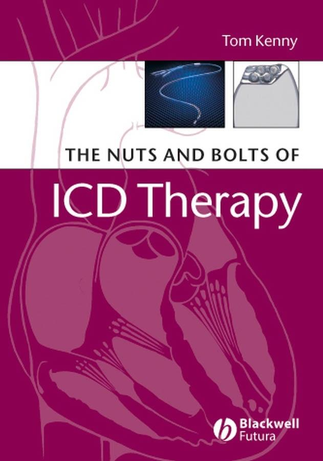 The Nuts and Bolts of ICD Therapy als Taschenbuch